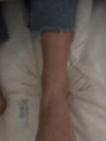 needles in ankle BM.jpg