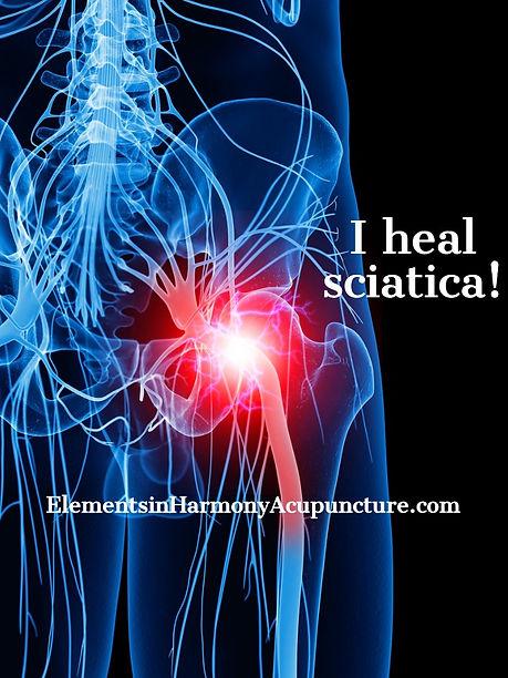 sciatic - painful-sciatic-nerve-picture-