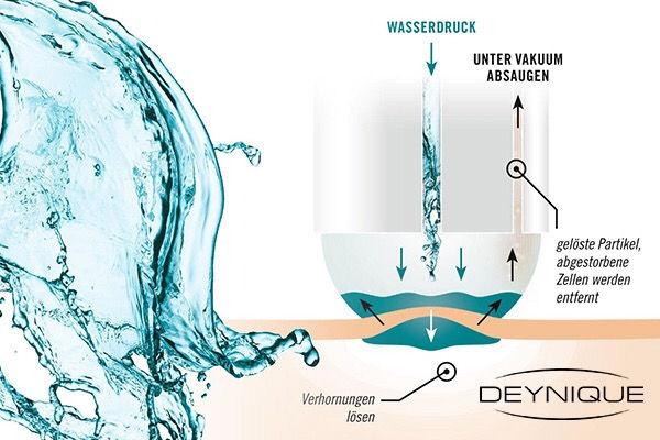 Aquabration