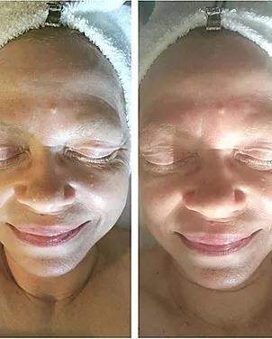 Lymphatic Drainage Facial