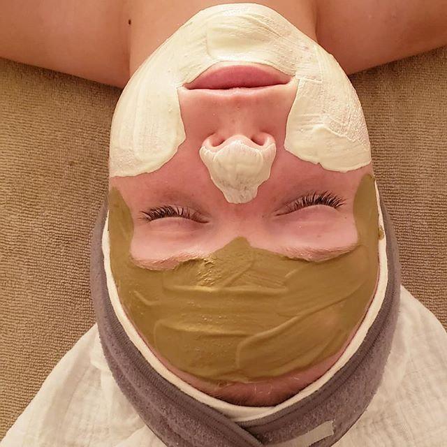 Full Chemical Peel Facial