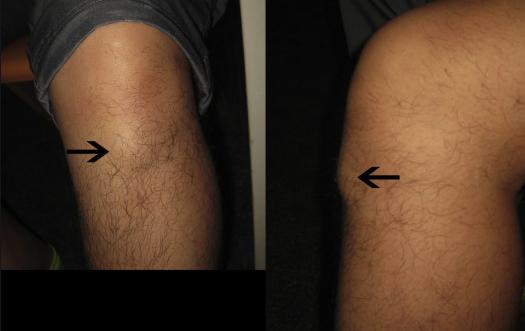 Training Around A Knee Nodule