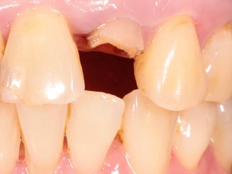 เมื่อคนไข้ฟันหัก