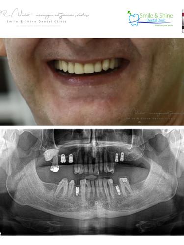 patient collage .015.jpeg