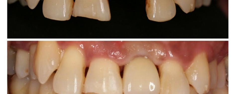 Dental implant.png