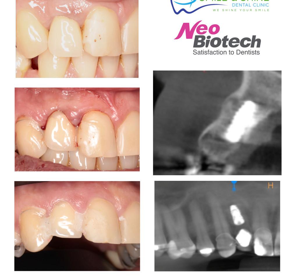 patient collage .002.jpeg