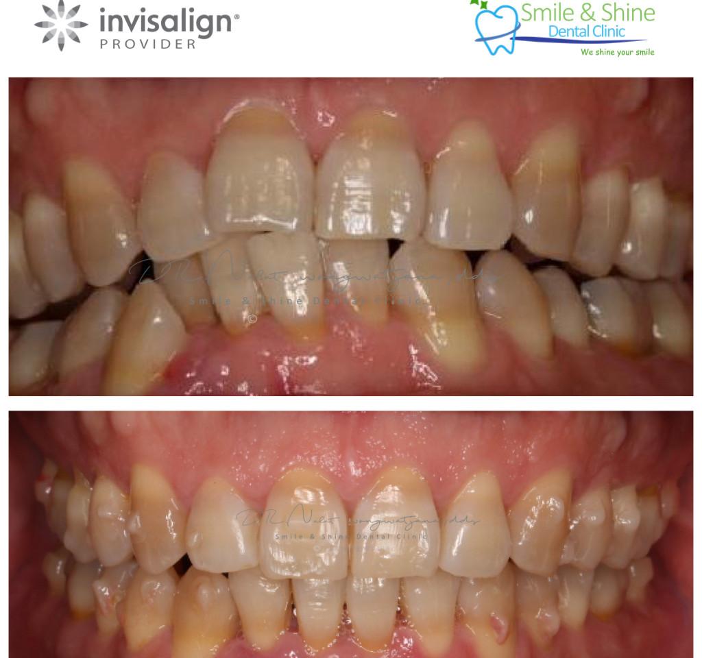 patient collage .006.jpeg