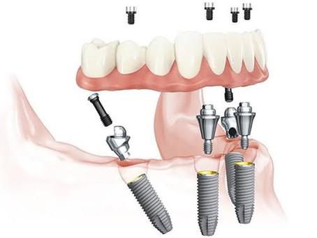การใส่ฟันทั้งปาก โดยใช้ฟันปลอม/สะพานฟัน ร่วมกับรากเทียม(ALL-ON-4,Teeth in A Day)