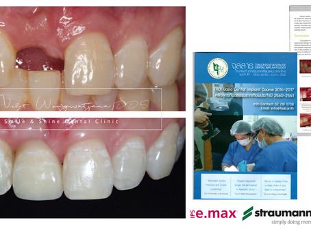 รากเทียมฟันหน้ากับฟันหลังแตกต่างกันไหม