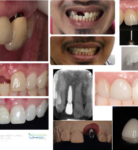 patient collage .001 copy.jpeg