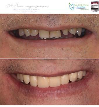 patient collage .014.jpeg