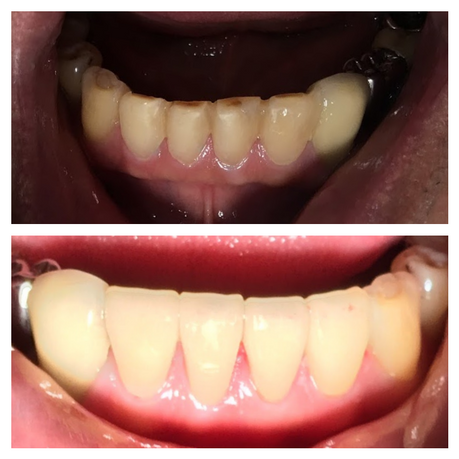 lower anterior veneers.png