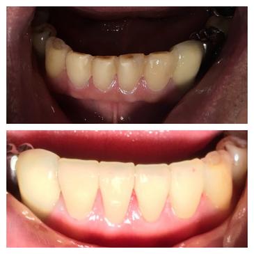 lower anterior veneers.png