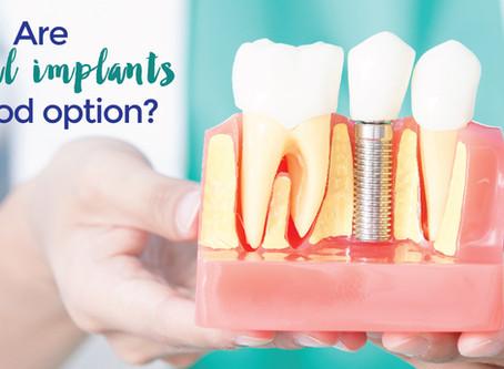 รากฟันเทียมมีหลายยี่ห้อ ต่างกันอย่างไร ยี่ห้อไหนดี