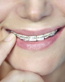 teenager-with-braces-KZEGTR9.jpg