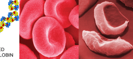 Oxbryta (voxelotor) and Adakveo (crizanlizumab) are targeted therapies for Sickle Cell Disease
