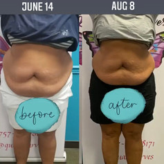 Weight Loss Wrap