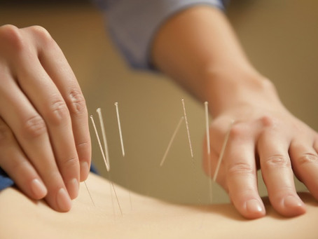 What Acupuncture Taught Me About Love