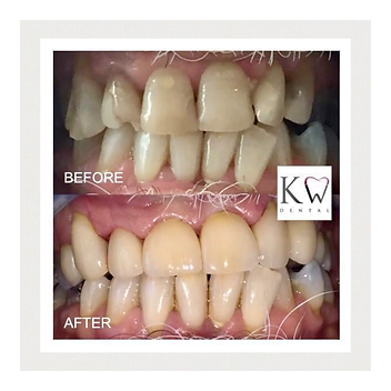KW Dental Dundee KW Dental Dundee white teeth cosmetic crown cosmetic dentist smile transformation white teeth veneer