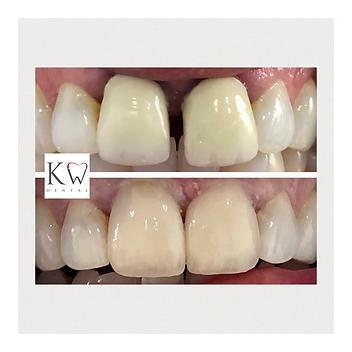 KW Dental Dundee KW Dental Dundee cosmetic crown teeth whitening smile transformation porcelain veneer