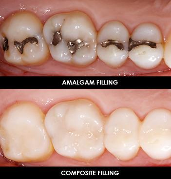 KW Dental Dundee KW Dental Dundee white filling composite cosmetic dentist teeth whitening composite filling bonding porcelain veneer crown