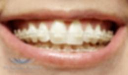 KW Dental Practice NHS Dentist Dundee Teeth Cosmetic Dentistry Orthodontics Six Month Smiles