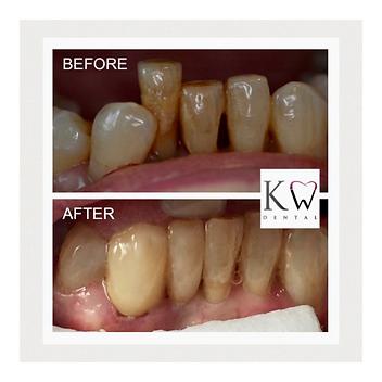 KW Dental Dundee KW Dental Dundee cosmetic bridge veneer crown composite bonding teeth whitening