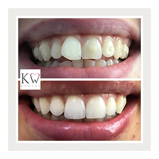 KW Dental Dundee KW Dental Dundee before after picture invisalign ortho orthodontics straight teeth white teeth