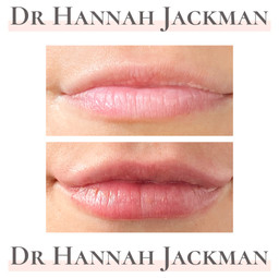 Dundee botox fillers lip fillers facial aesthetics Scotland best lip fillers doctor dentist anti wrinkle anti aging cheek fillers rhinoplasty nose job lips facial aesthetics Dundee lip filler profhilo skincare
