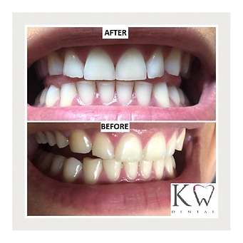 KW Dental Dundee KW Dental Dundee teeth whitening before after white teeth cosmetic dentist dentistry bright smile