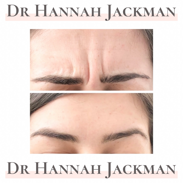 Dundee botox fillers lip fillers anti-wrinkle facial aesthetics botox fillers botox fillers botox fillers