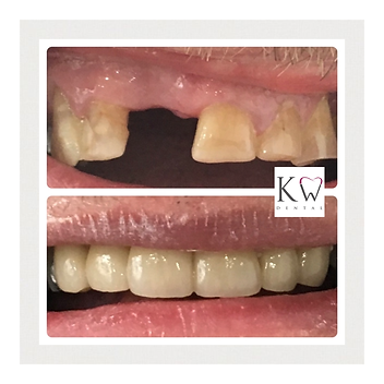 KW Dental Dundee KW Dental Dundee dental cosmetic bridge smile transformation teeth whitening veneer teeth whitening