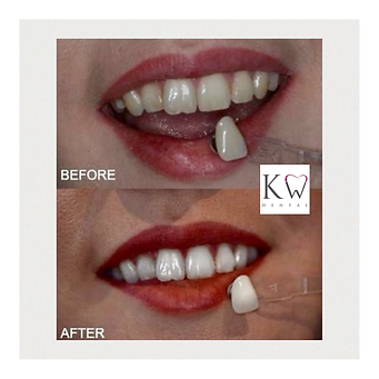 KW Dental Dundee KW Dental Dundee white teeth whitening amazing results bright smile