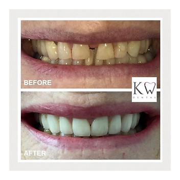 KW Dental Dundee KW Dental Dundee veneer crown bridge cosmetic dentist smile transformation white teeth