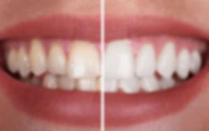 Teeth whitening results.jpg