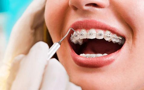 Orthodontic Treatment.jpg