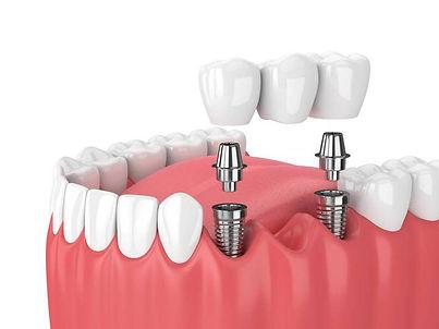 dental implant model.jpg