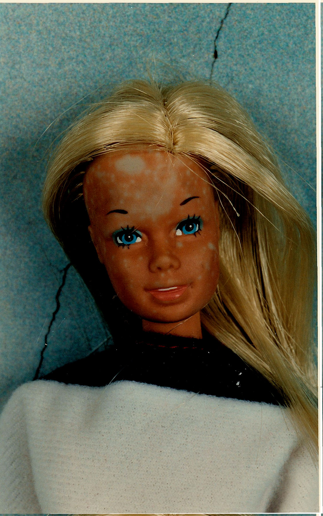 Skin Cancer Barbie