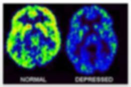 Norma vs Depressed Brain