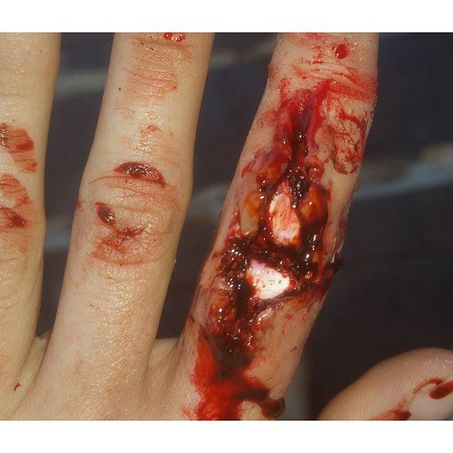 Injured Finger Makeup