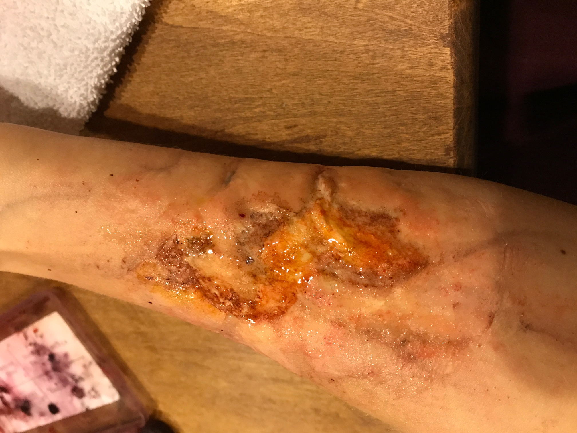 Special Effects Makeup Burn on Arm