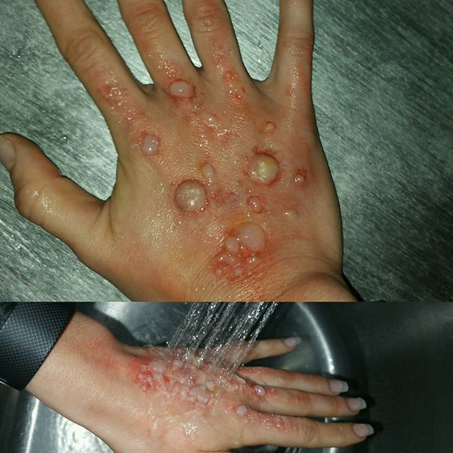 Water Burns/ Blisters Makeup