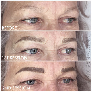 2nd Session White Brow Microblading