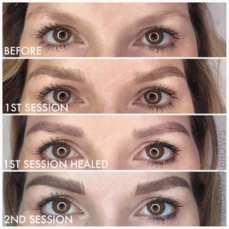 Sparse eyebrow microblading in 2 sessions