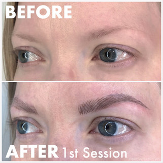 Defined Brows in 1 session with Browma