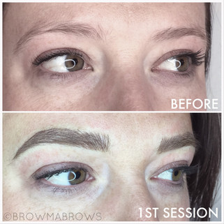 Complete Brow Transformation after 1 Microblading Session