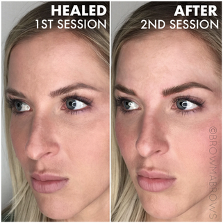 Side By Side Full Face Microblading Comparison