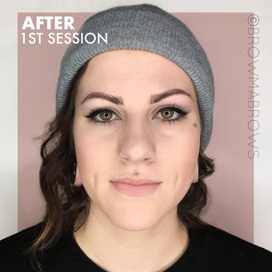 After 1st Session Full Face Microblading Results