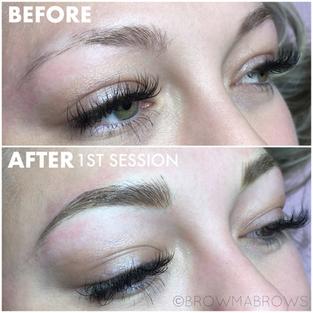 No Eyebrow Hair microblading Restoration