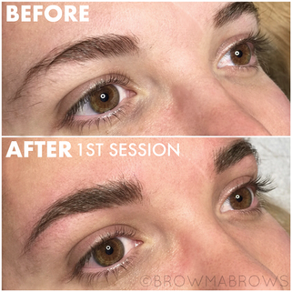 After 1 Session Microblading Scar